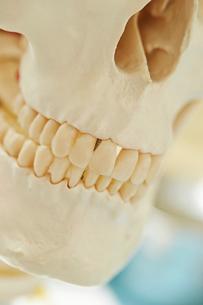 歯科治療の写真素材 [FYI01809091]