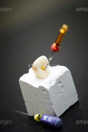 歯科治療の写真素材 [FYI01809278]