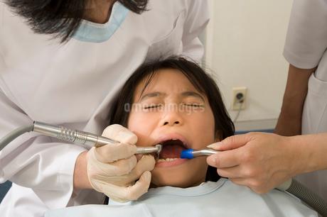 歯科治療を受ける女の子の写真素材 [FYI01848127]