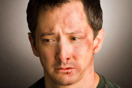injured man s face with bruisesの写真素材 [FYI01980113]