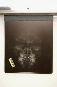 X-ray of human faceの写真素材 [FYI01983098]