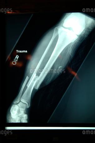 X-ray of broken boneの写真素材 [FYI01985144]