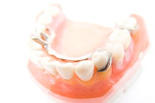 部分入れ歯の模型の写真素材 [FYI02003705]