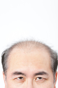 薄毛男性の頭部の写真素材 [FYI02004054]