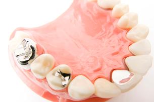 部分入歯の模型の写真素材 [FYI02004503]