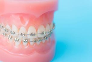矯正装置をつけた歯の模型の写真素材 [FYI02006313]