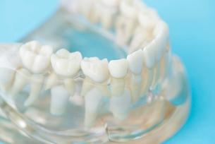 歯の模型の写真素材 [FYI02006679]