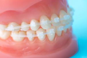 矯正装置をつけた歯の模型の写真素材 [FYI02007453]