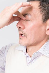 眼の痛みを訴えるシニア男性の写真素材 [FYI02008049]