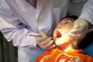 歯の治療をする少年の写真素材 [FYI02035634]
