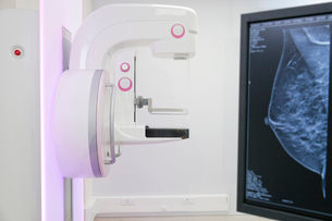 Mammogram Scanner In Hospital Radiology Departmentの写真素材 [FYI02123833]
