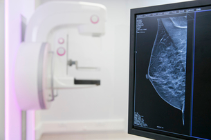 Mammogram Scanner In Hospital Radiology Departmentの写真素材 [FYI02124679]