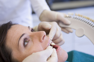 Dentist treating patientの写真素材 [FYI02129810]