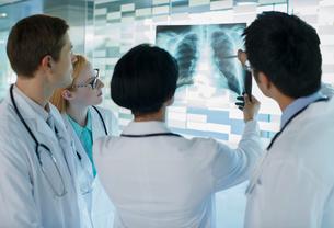Doctors looking at patient's x-rayの写真素材 [FYI02163743]