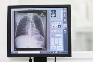 Computer in hospitalの写真素材 [FYI02214818]