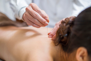 Young woman receiving acupunctureの写真素材 [FYI02225226]
