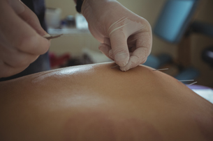 Close-up of therapist giving acupuncture to manの写真素材 [FYI02237836]