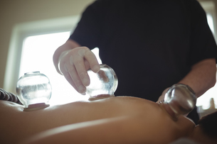 Mid section of therapist giving cupping therapy to manの写真素材 [FYI02237929]