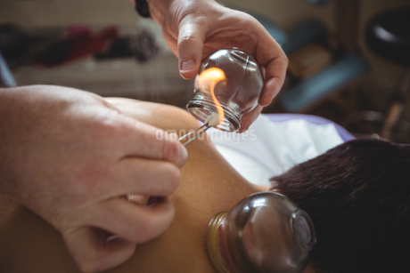Therapist giving fire cupping therapy to manの写真素材 [FYI02238135]