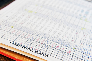 Closeup of dental records for a typical patient.の写真素材 [FYI02262651]