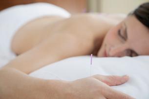 female patient receiving acupuncture treatmentの写真素材 [FYI02285914]