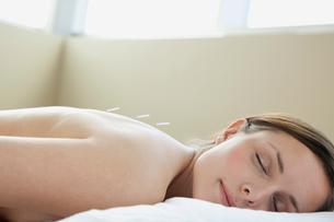 female patient receiving acupuncture treatmentの写真素材 [FYI02288468]