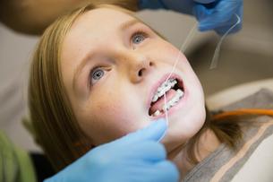 Dental assistant flossing between girls bracesの写真素材 [FYI02301470]
