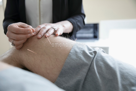 Female acupuncturist inserting needles into knee of man on clinic examination tableの写真素材 [FYI02319423]