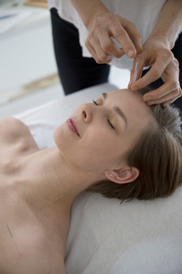 Acupuncturist applying needle to forehead of serene womanの写真素材 [FYI02320087]