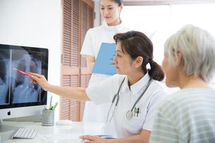 レントゲン写真を見る医者と看護師とシニア女性患者の写真素材 [FYI02483598]