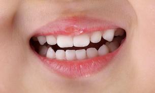 綺麗な歯の女の子の写真素材 [FYI02654136]