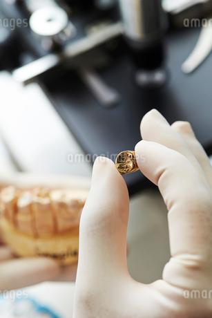 歯科治療の写真素材 [FYI02676943]