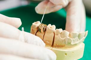 歯科治療の写真素材 [FYI02677847]