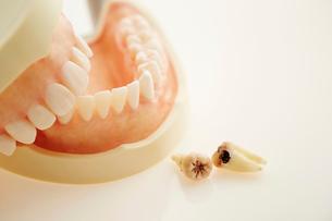 歯型と虫歯の写真素材 [FYI02678347]