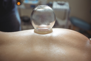 Mid section of man receiving cupping therapyの写真素材 [FYI02705705]