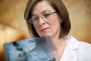 doctor reviewing xraysの写真素材 [FYI02709742]
