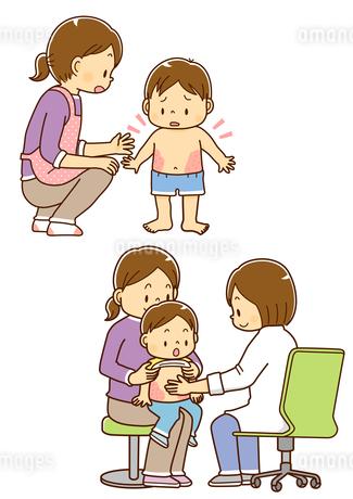 湿疹の出た幼児と母親、皮膚科を受診する親子と診察する女性医師のイラスト素材 [FYI02836311]