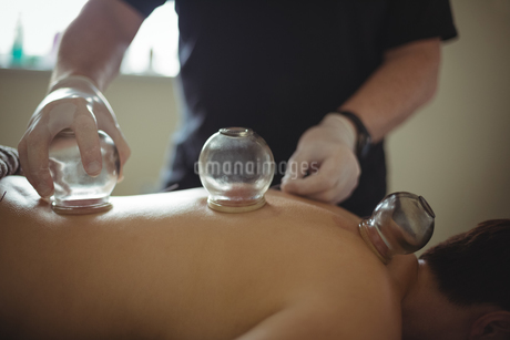 Mid section of therapist giving cupping therapy to manの写真素材 [FYI02857772]