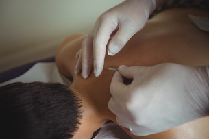 Hands of therapist giving acupuncture to manの写真素材 [FYI02857773]