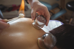 Therapist giving fire cupping therapy to manの写真素材 [FYI02857872]