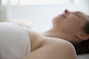 Serene woman receiving acupuncture with needle in shoulderの写真素材 [FYI02860280]