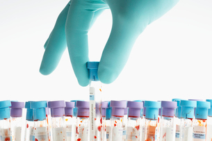 Hand holding blood sample in test tubeの写真素材 [FYI02941150]