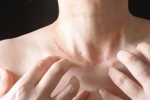 皮膚病の女性の写真素材 [FYI03143989]