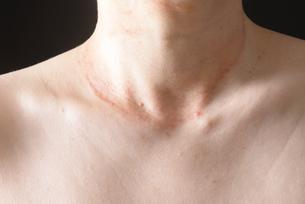 皮膚病の女性の写真素材 [FYI03143991]