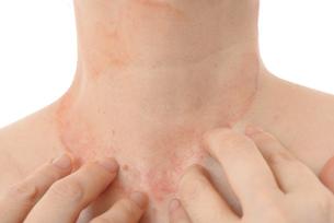 皮膚病の女性の写真素材 [FYI03143995]
