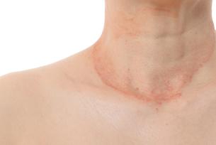 皮膚病の女性の写真素材 [FYI03144000]