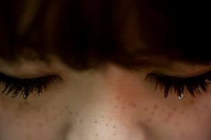 まつげに涙のジェルをつけたそばかすのある20代女性の写真素材 [FYI03207506]