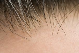白髪混じりの頭髪の生え際の写真素材 [FYI03213222]