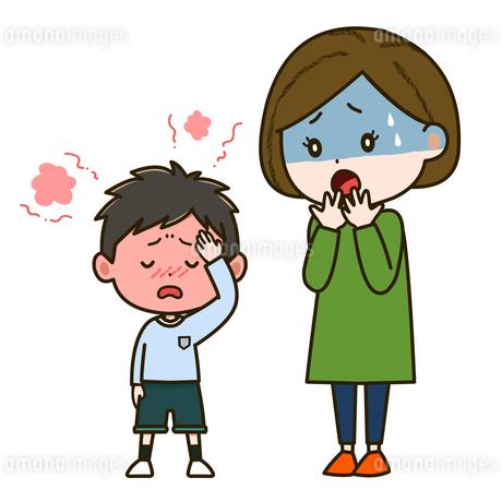 発熱に苦しむ男の子と心配そうな母親 イラストのイラスト素材 [FYI03417528]