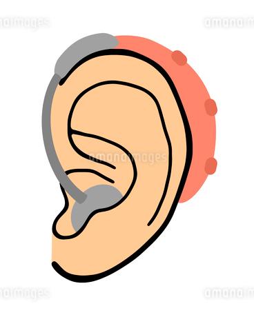 耳に付けた補聴器のイラスト素材 [FYI03451210]
